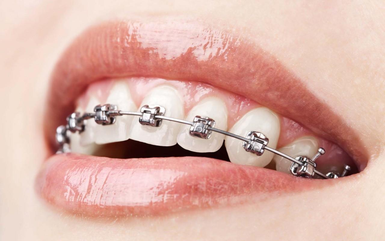 ortodonta praga północ