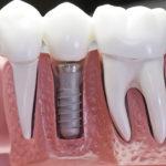 27.11 - Otwarty Dzień Implantologiczny